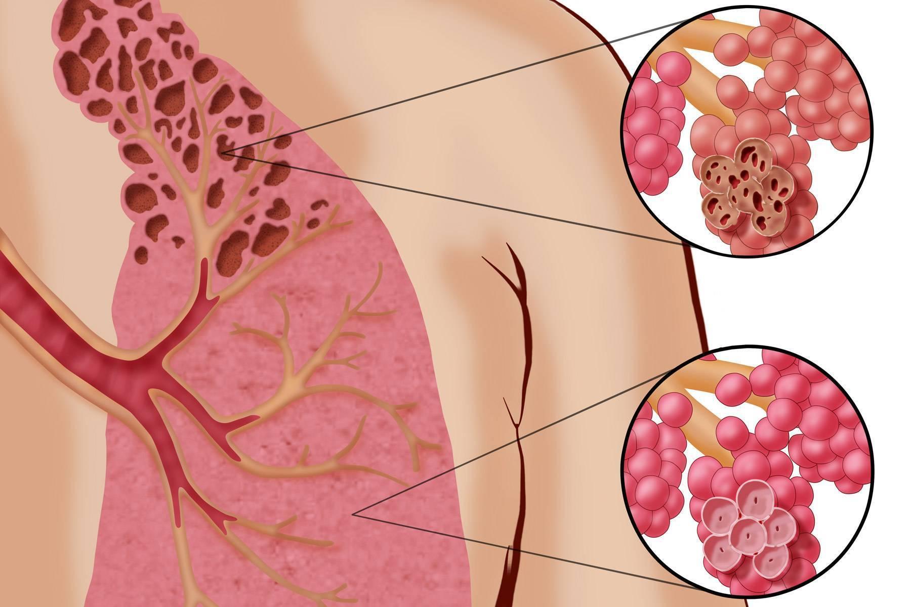 Облитерирующий бронхиолит: симптомы и лечение у взрослых
