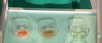 Кашель с выделением мокроты прозрачного цвета