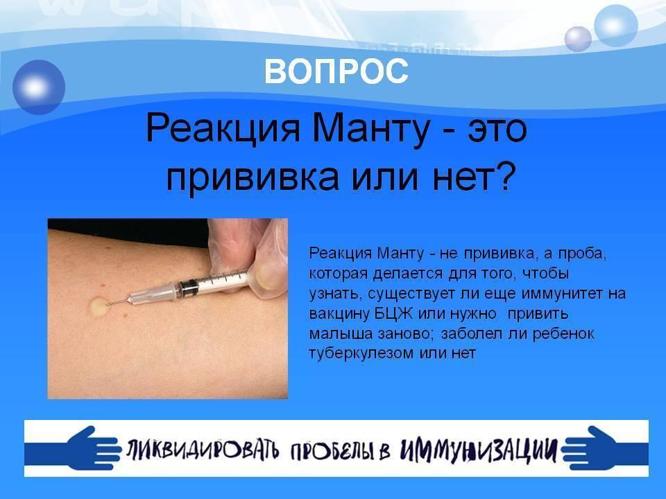 Можно ли мочить манту: влияние воды и меры предосторожности / mama66.ru