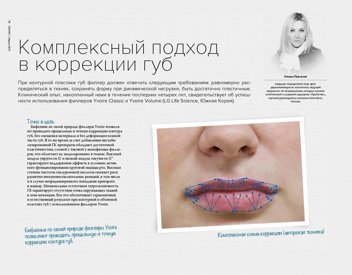 Филлеры: осложнения после введения в носогубные складки, под глаза, в губы, после контурной пластики, коррекции носослезной борозды, лица, введения гиалуронки, инфекция и лечение