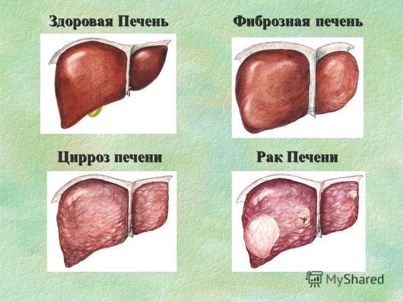 Цирроз печени это рак или нет: сходства и различия
