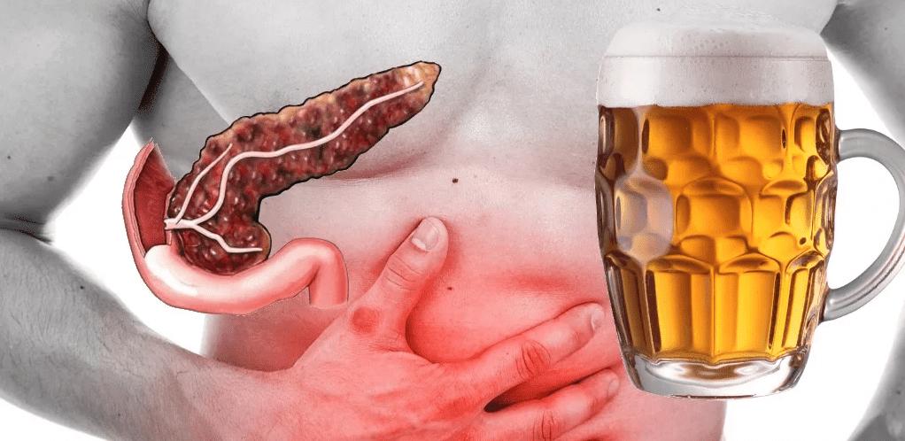 Алкоголь и поджелудочная железа: можно ли употреблять спиртное