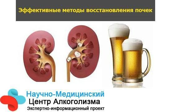 Камни в почках и алкоголь: почему нельзя употреблять спиртные напитки при мочекаменной болезни