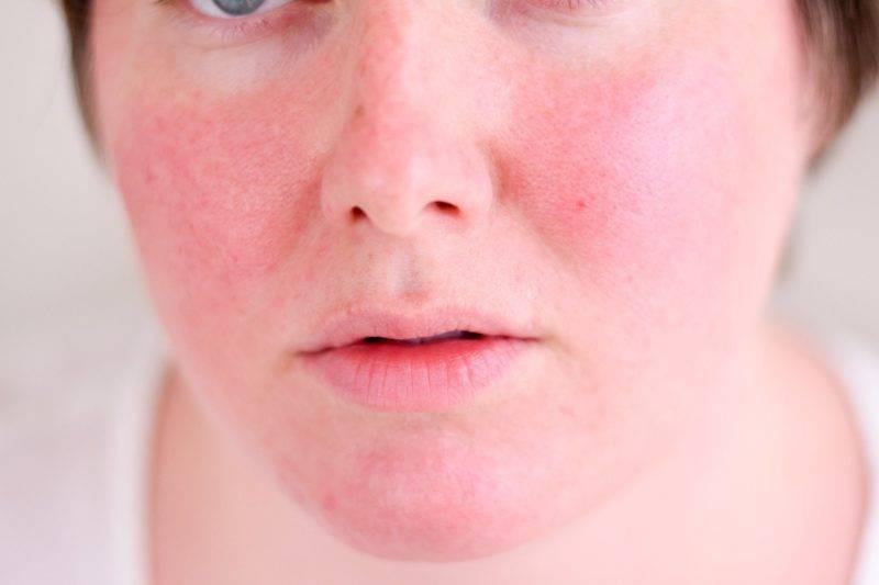 Красные пятна на лице и теле после алкоголя