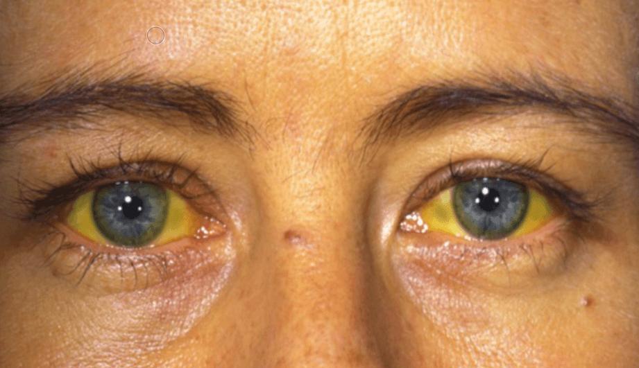 Цирроз печени на последней стадии: фото людей