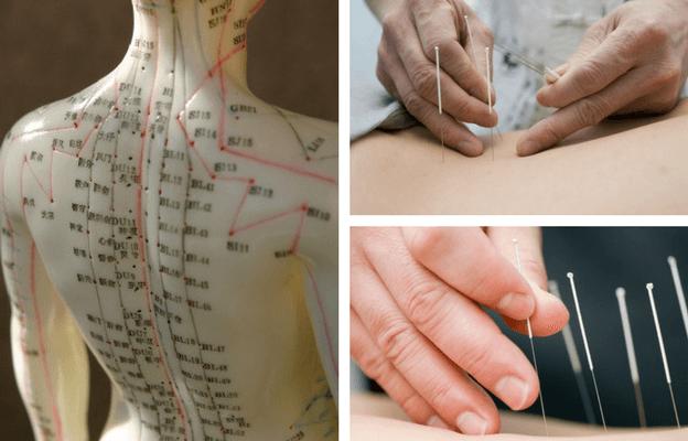 Иглорефлексотерапия: показания и противопоказания к лечению