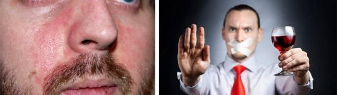 Прыщи от пива на лице - причины появления, как и чем лечить