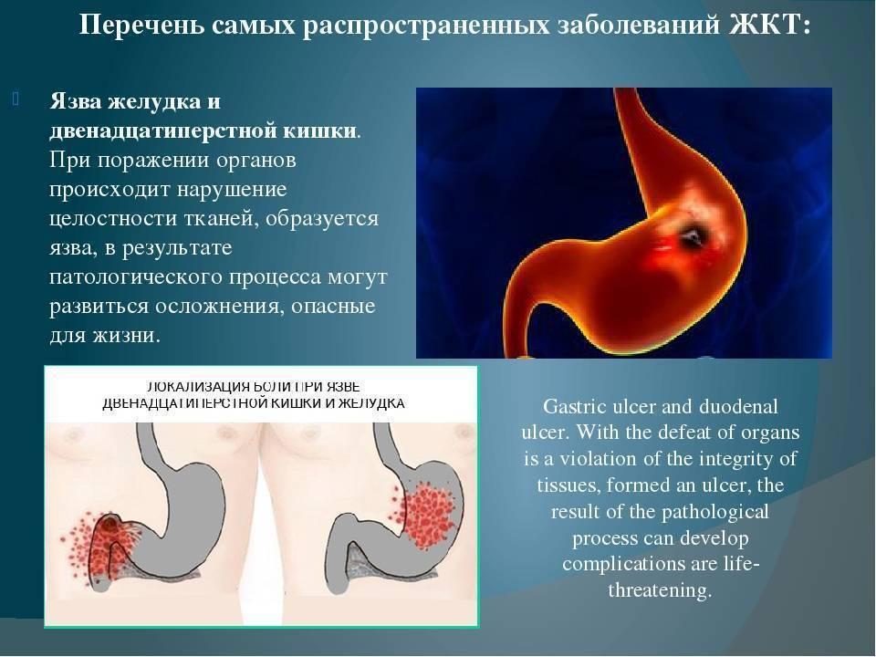 Курение + здоровый кишечник: возможно ли?