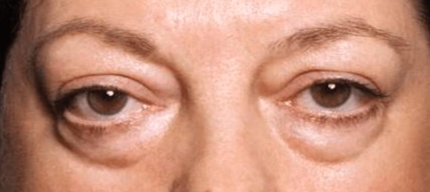 Мешки под глазами после алкоголя причины и лечение у мужчин