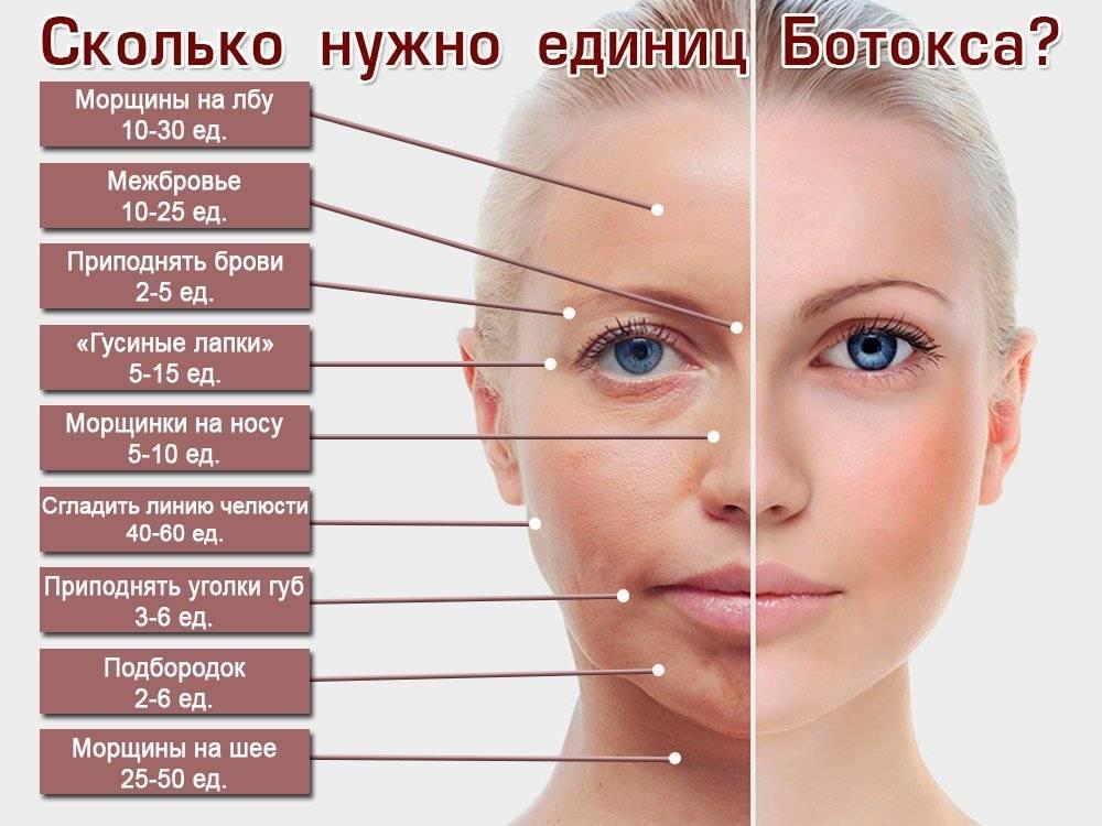Филлеры: осложнения после введения в носогубные складки, под глаза, в губы, после контурной пластики, коррекции носослезной борозды, лица, введения гиалуронки, инфекция и лечение – домашняя косметика