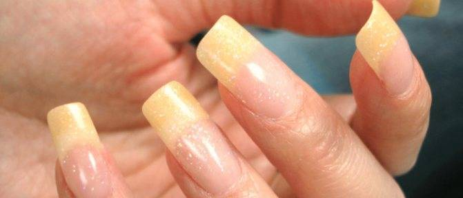Как убрать запах сигарет и желтизну с рук, желтый палец курильщика | vrednuga.ru