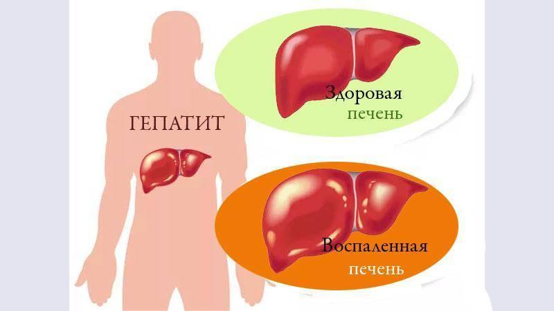 Печень: 6 признаков, указывающих на воспаление