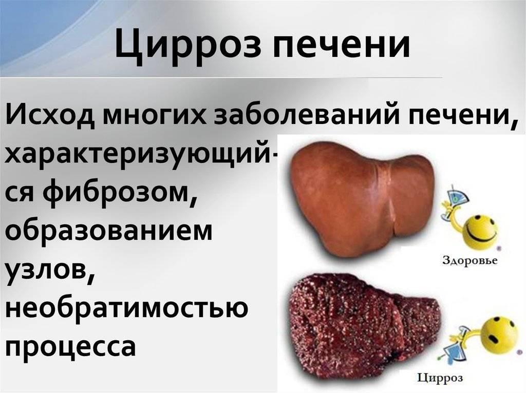 Мифы о циррозе печени : labuda.blog мифы о циррозе печени — «лабуда» информационно-развлекательный интернет журнал