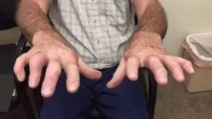 Что делать, если трясутся руки после алкоголя: как убрать тремор после запоя в домашних условиях