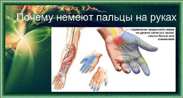 Лечение онемения рук | лекарства и народное лечение онемения рук | компетентно о здоровье на ilive