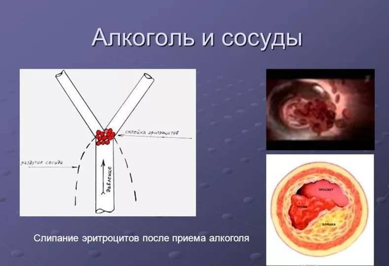 Влияние алкоголя на кровеносные сосуды