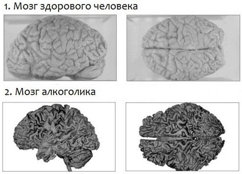 Восстановление головного мозга после алкоголя | здоровье вашей головы