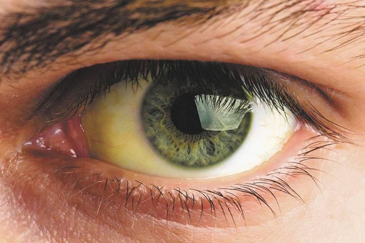 Белки глаз пожелтели – желтые глаза и кожа у человека при гепатите: что делать