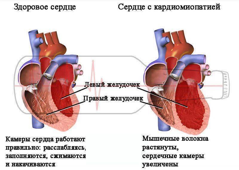 Частое сердцебиение после алкоголя: причины, симптомы, осложнения, лечение   всердце.ком