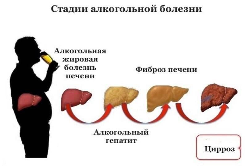 Чем защитить печень от алкоголя и как защитить организм
