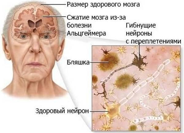 Деменция у пожилых людей: симптомы - подробная информация