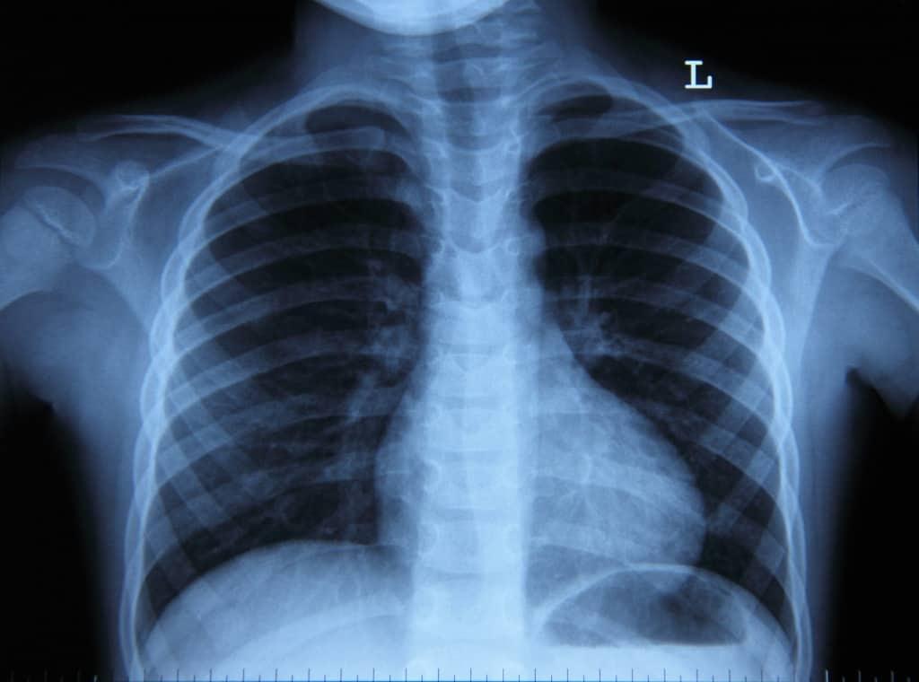 Фото рентгена легких здорового человека
