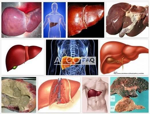 Симптомы жирового алкогольного гепатоза печени