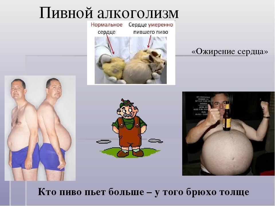 Пивной алкоголизм у мужчин и женщин: признаки и лечение