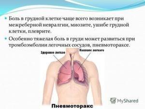 Давит в груди без кашля
