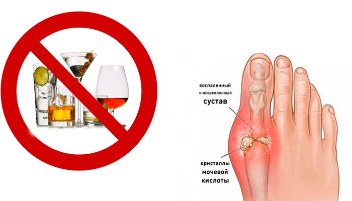 Почему нельзя алкоголь при подагре, можно ли пить... - zdorsustav.ru