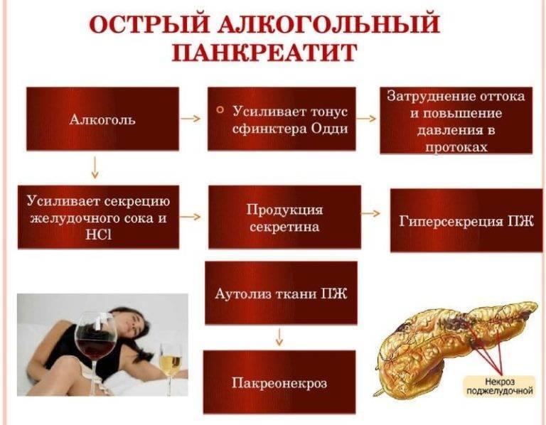 Алкогольный панкреатит: симптомы, лечение, прогноз выживаемости