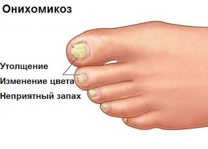 Как убрать следы от никотина на пальцах?