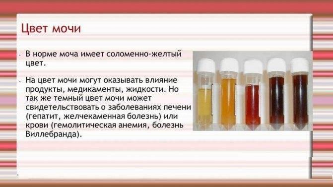 Влияет ли алкоголь на анализы мочи: что покажут результаты