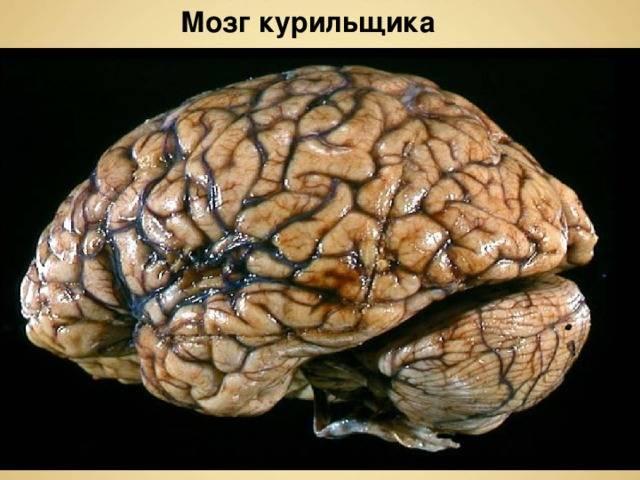 Как никотин влияет на мозг человека
