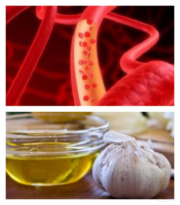 Чистка сосудов чесноком и лимоном: рецепты приготовления и пропорции