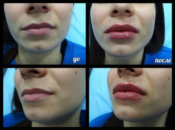 Можно ли курить после увеличения губ | wine & water