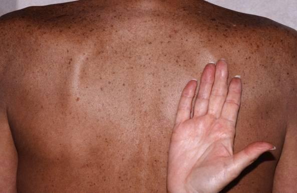 Сосудистые звездочки на теле при циррозе фото — Лечим печень