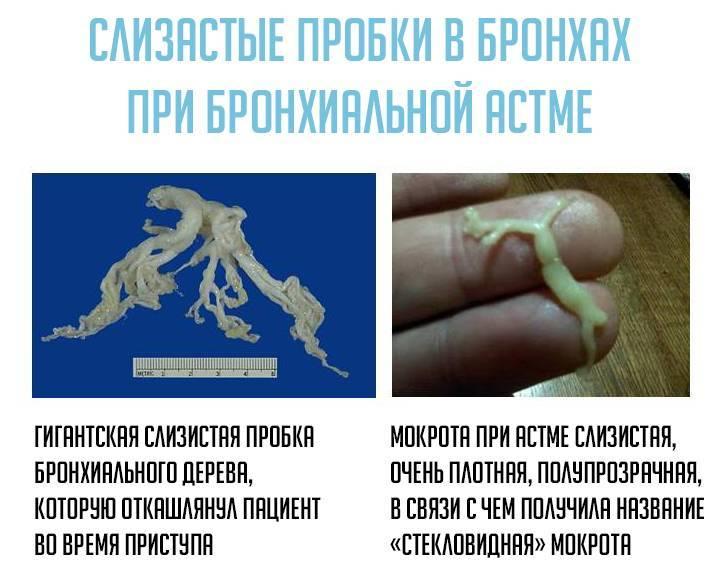 Мокрота в горле без кашля: причины, лечение pulmono.ru мокрота в горле без кашля: причины, лечение