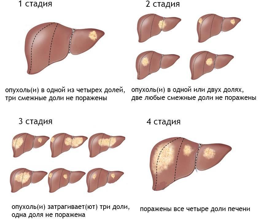 Цирроз печени 2 степени: сколько с ним живут, симптомы и лечение
