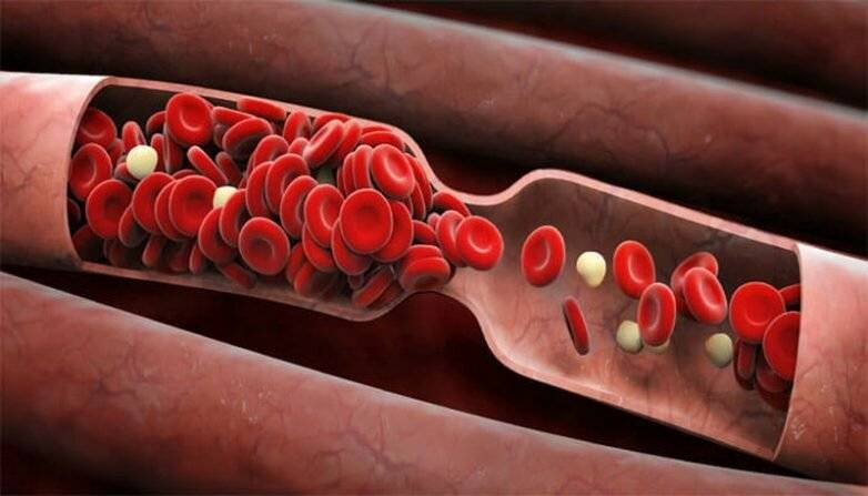 Разжижает ли кровь алкоголь: влияние спиртного, негативные последствия - вылечим болезнь