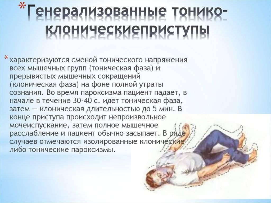 Алкогольная эпилепсия - лечение, последствия, симптомы перед приступом