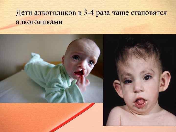 Дети алкоголиков: психология, помощь, лечение, синдром вда