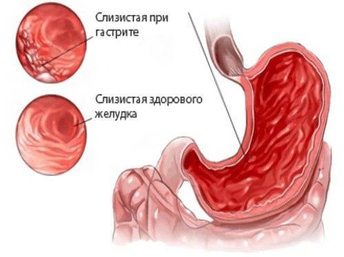 Как заставить работать желудок - лучшие методы по борьбе с ленивым желудком