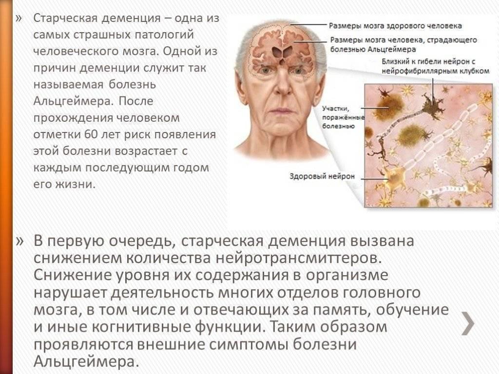 """Деменция: сосудистая и другие виды — признаки, причины, лечение.... - познавательный сайт ,,1000 мелочей"""" - медиаплатформа миртесен"""