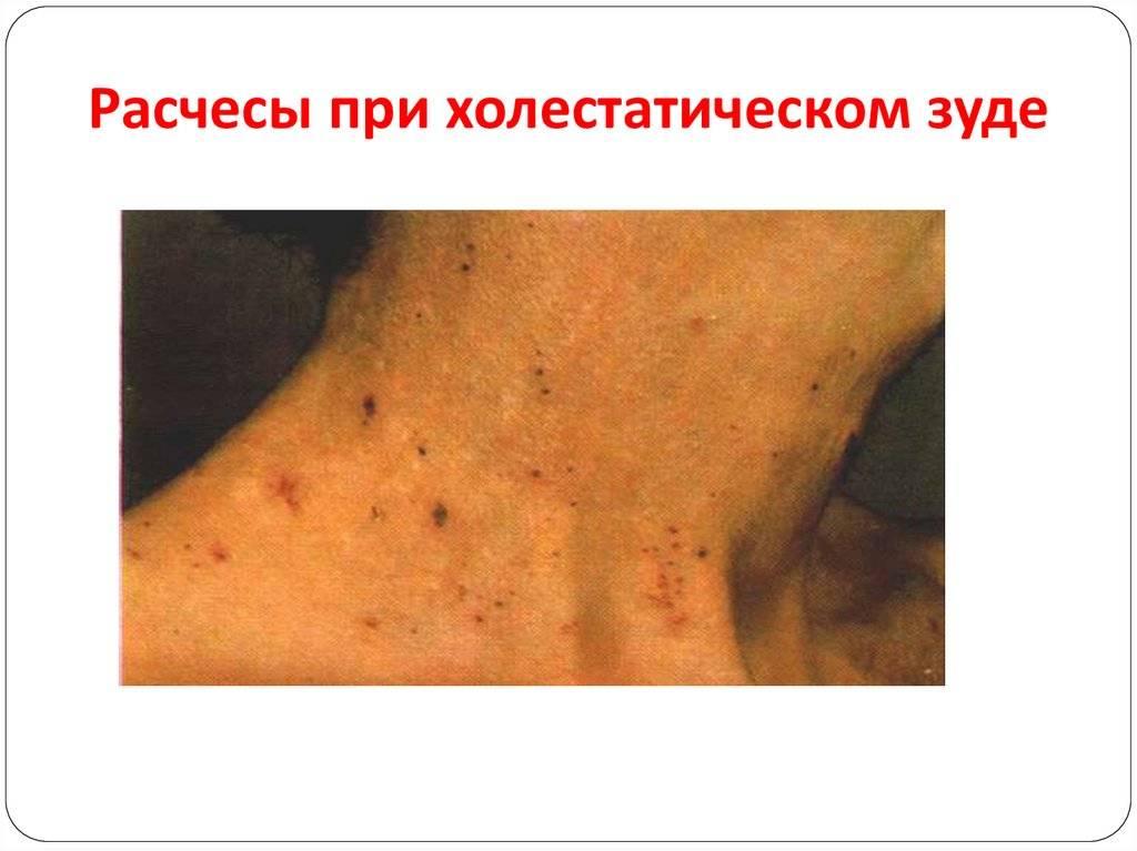Зуд кожи тела при заболеваниях печени: причины появления пятен и высыпаний