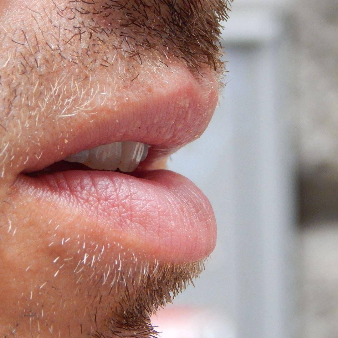 Запах ацетона изо рта у взрослого: причины, диагностика, лечение