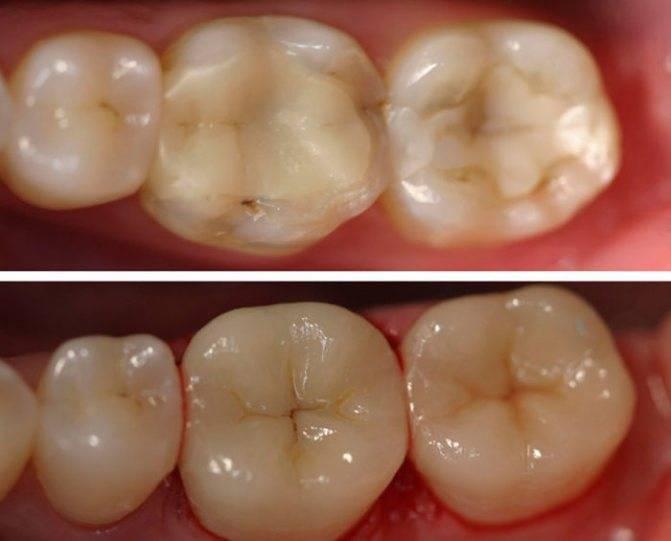 Можно ли пить после пломбирования зуба: отличия световой пломбы