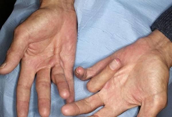 Полезно знать, почему начинают трястись руки с похмелья