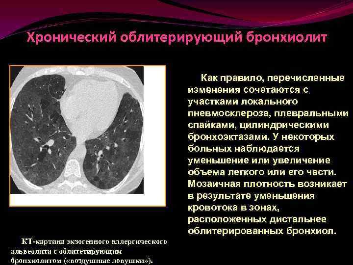 Облитерирующий бронхиолит - wikivrachinfo.ru