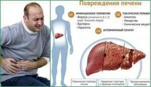 Как долго держится температура при гепатите а — здоровая печень